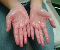 Остановите чрезмерную потливость рук